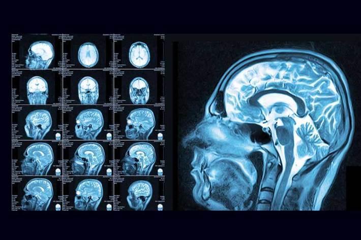 آنالیز خطر سکته مغزی بر اثر ابتلا به کووید 19